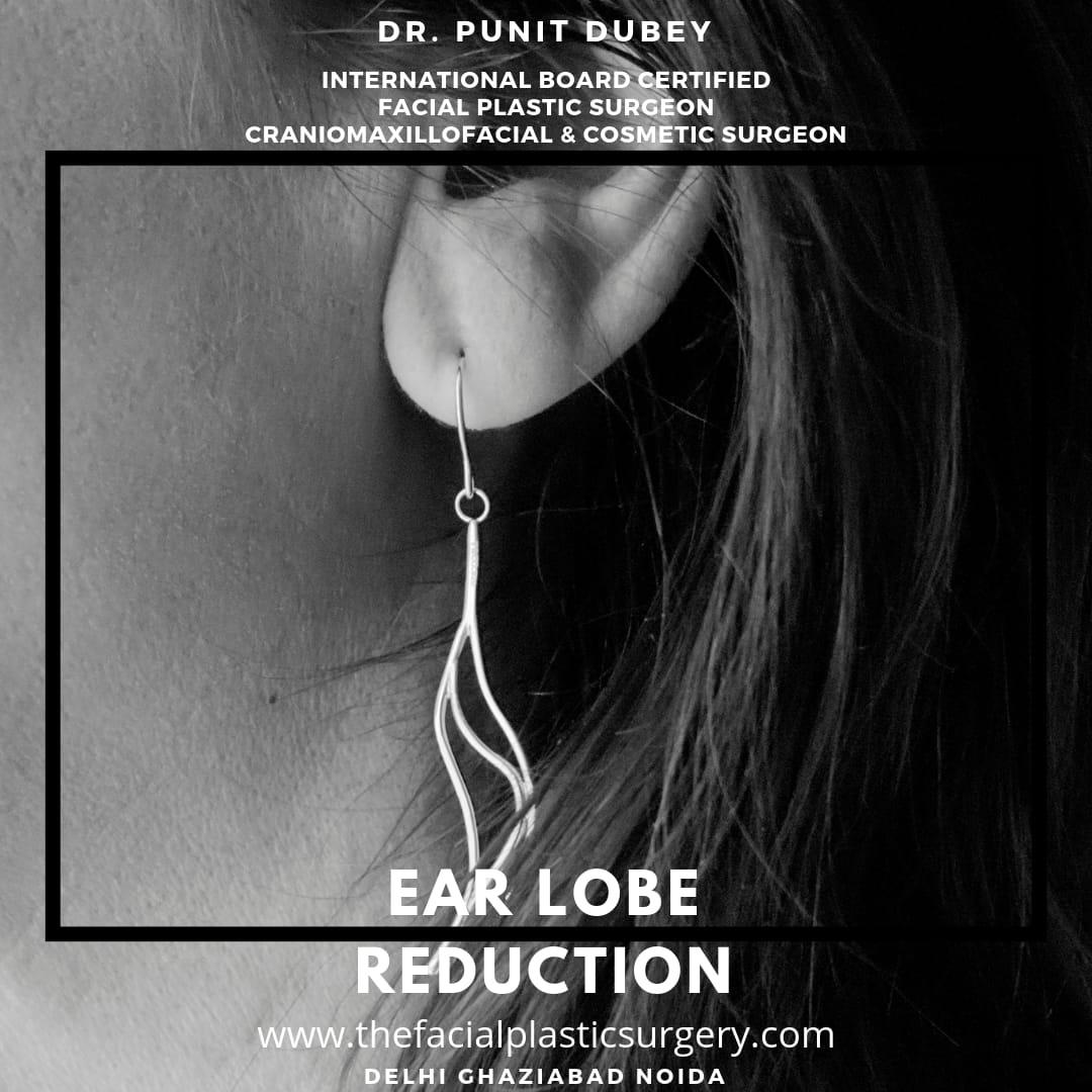 Ear lobe reduction Otoplasty by Dr. Punit Dubey in Delhi Ghaziabad Noida