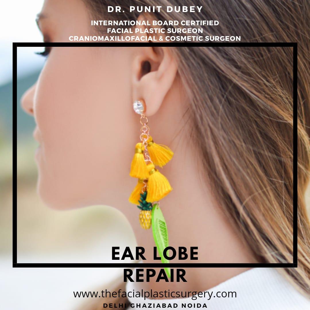 Cosmetic Ear Lobe Repair by Dr. Punit Dubey in Delhi Ghaziabad Noida