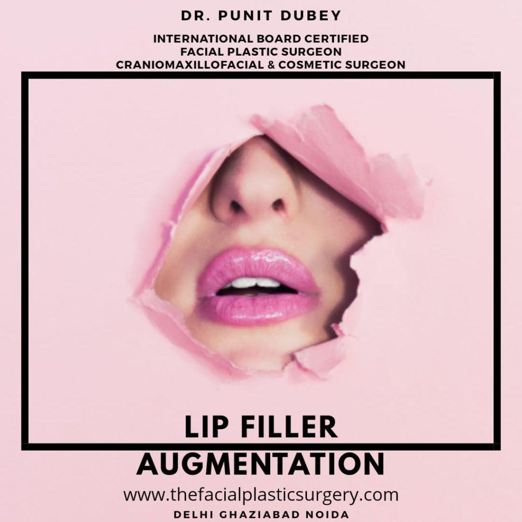 Lip Filler Augmentation in Delhi Ghaziabad Noida by Dr. Punit Dubey