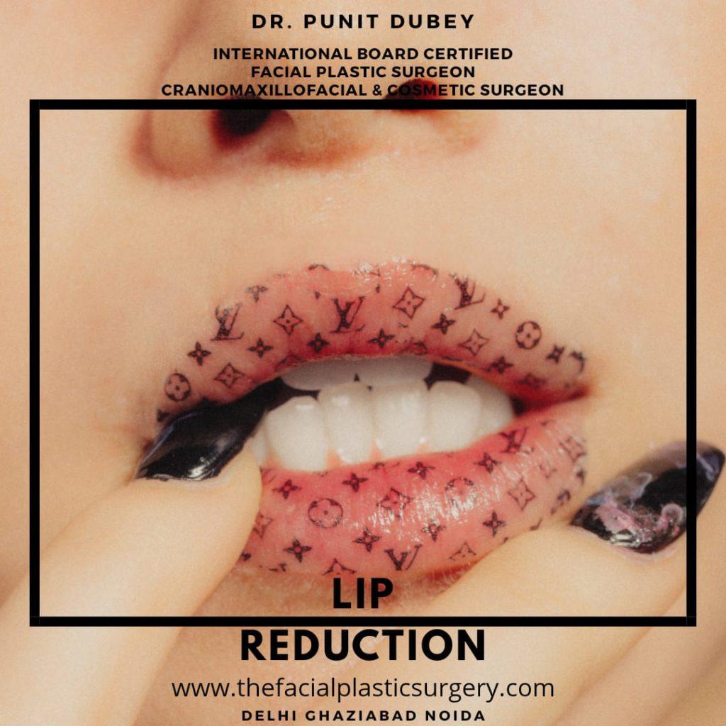 Lip Reduction Surgery in Delhi