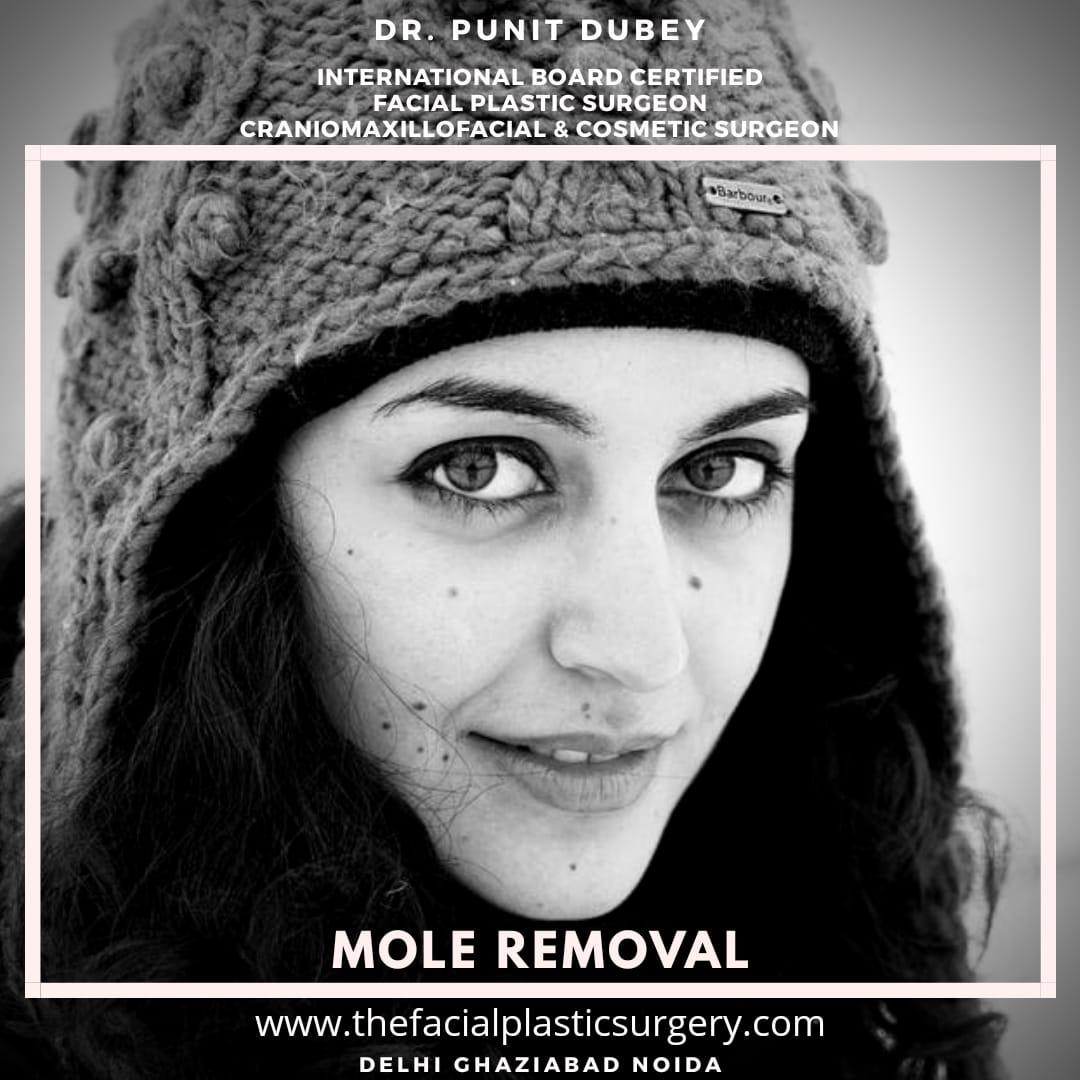Mole removal by Dr. Punit Dubey in Delhi Ghaziabad Noida