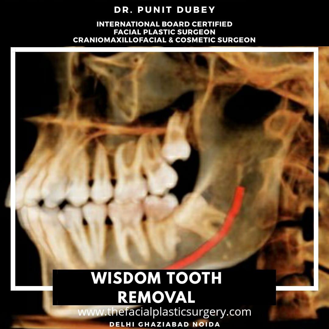 Wisdom Tooth Removal in Delhi